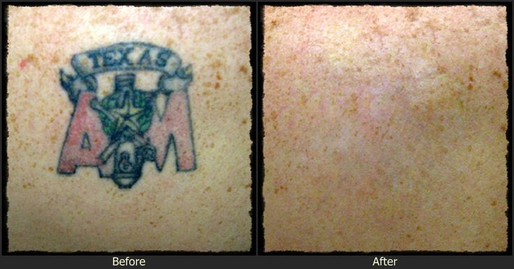 The 25+ best Tattoo removal cost ideas on Pinterest | At home ...