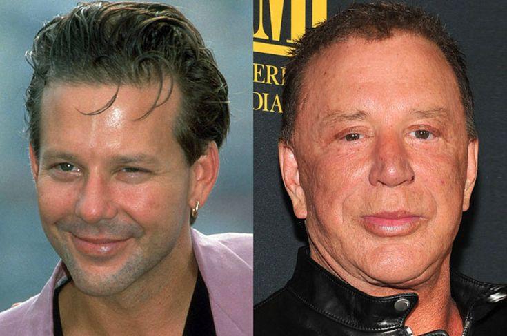 Celebrities na een RAMPZALIG resultaat met plastische chirurgie - Deel 1 van 2