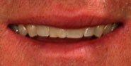 Houston Porcelain Veneers – 48-Hour Smile Makeovers with No-Prep Lumineers #teeth #bleaching  #cost of porcelain veneers # Porcelain Veneer  http://reviewscircle.com/health-fitness/dental-health/natural-teeth-whitening