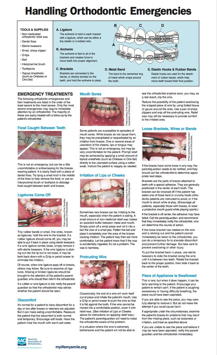 oral hygiene instructions for patients