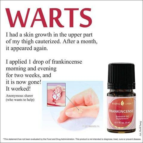 My own testimonial ~ For years I battled with seed warts on the bottom of my heal...within two weeks of applying YL Theives and Frankincense,  they were GONE for Good~! YL Distributor #1091548 www.essentiallywellness.blogspot.com