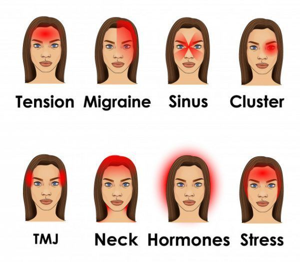 Stronger headaches can even last for couple of days. So, if you wonder what is the real cause for all those headaches, read this article. #BeautyTipsForSkinBeauty Secrets For Skin