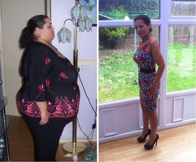 'Morbidly obese' woman rejects gastric band op, loses 20st the old-fashioned way