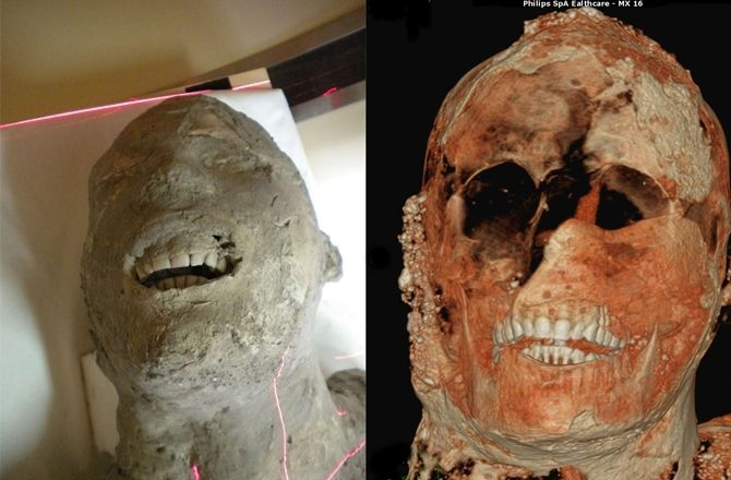 The analysis revealed, among other facts, that the victims of Pompeii had very healthy teeth.