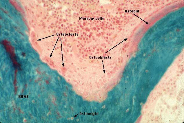 Tissu conjonctif - Os spongieux