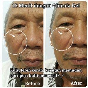 Glucola Gel MGI adalah produk inovasi terbaru dari PT Millionaire Group Indonesia (MGI) untuk perawatan kulit wajah dan bagian tubuh lainnya. Glucola Gel mengandung Gluthatione + Collagen, berfungsi sebagai cleanser dan filler berupa gel.