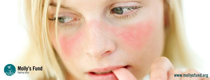 The #Lupus Butterfly Rash or Malar Rash: Information You Need to Know • Molly's Fund