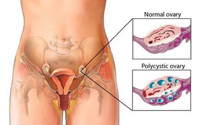 Most Common Symptoms of Ovarian Disease