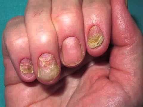 El hongo de las uñas en los pies el tratamiento de la pastilla