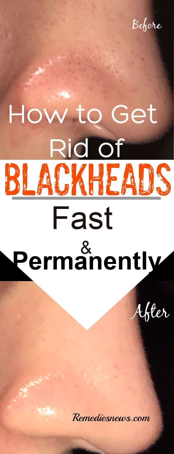 How to Get Rid of Blackheads Fast- 9 Effective Natural Remedies
