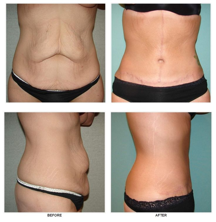 Tummy Tuck Somerville