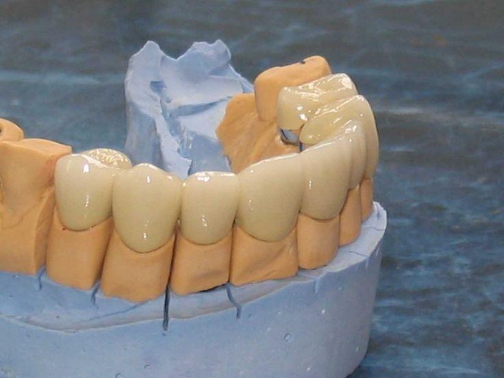 Curs teoretic de o zi, pe data de 8 octombrie 2016, adresat medicilor stomatologi sustinut de Prof. Dr. Nasser Barghi, cu traducere simultana asigurata de Dr. Dragos Smarandescu.