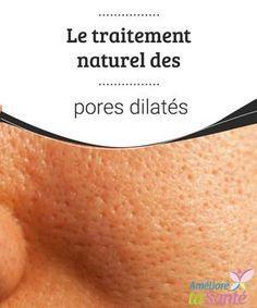 Le traitement naturel des pores dilatés Vous souffrez de pores dilatés et apparents ? Pour vous en débarrasser, vous pouvez utiliser plusieurs traitements efficaces, même naturels.