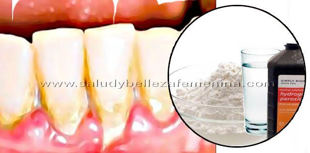 El enjuague bucal para eliminar el sarro es la mejor manera de complementar el cepillado de los dientes, ya que permite reducir la presencia de placa, además de alcanzar y eliminar las bacterias que escapan de la limpieza dental.