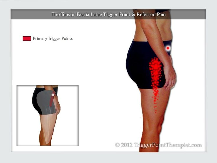 Tensor Fascia Lata Trigger Point in IT Band and Hip Pain Complaints | TriggerPointTherapist.com