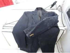 How To Remove Ugly Mold And Mildew Stains And Odor From Clothes