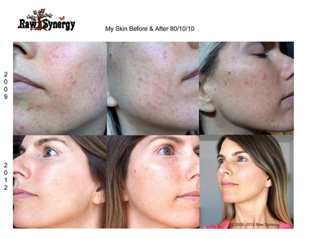 Photos showing Alicia Grant  39 s skin before and after adopting a low fat raw food diet