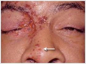 Signo de Hutchinson: En caso de herpes facial, la afección de la punta de la nariz indica compromiso de la rama nasociliar del nervio trigémino y por tanto, la presencia de herpes oftálmico.
