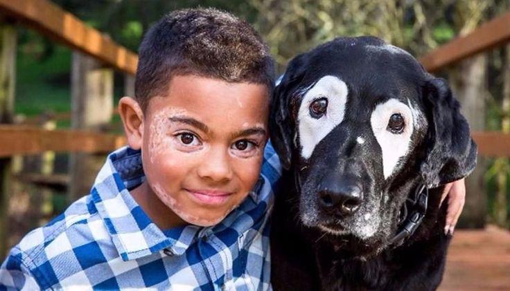 Hoy es el Día Mundial del Vitiligo: aún se desconoce el origen de esta patología: Se trata de una patología que provoca la despigmentación…