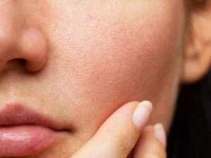 3 amazing home remedies to make all Open Pores Disappear From Your Skin