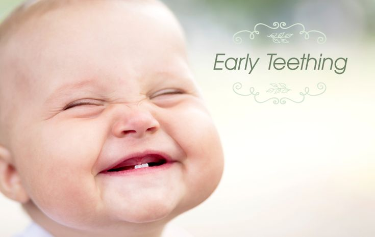 What happens when your baby starts teething early? Here are some things you can do to help your baby in the teething process #earlyteething #teething #teethers #bestbabyproducts #teethingtoys