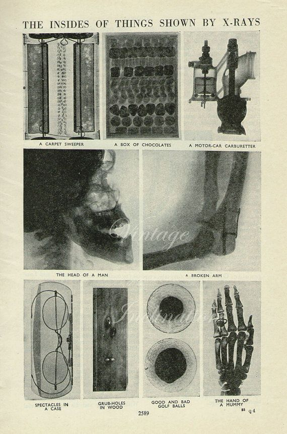 Antique Xray Print, The Insides Of things Shown By X Rays, 1938 medical, skeleton, bones. Published in Great Britain.