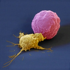 A natural killer cell (NK cell, yellow) of the immune system attacking a cancer cell (red).  (Photo courtesy of Prof. Dr. Rupert Handgretinger, Clinic for Children's and Youth Medicine, University Hospital of Tübingen, Gemany; with permission of Eye of Science)