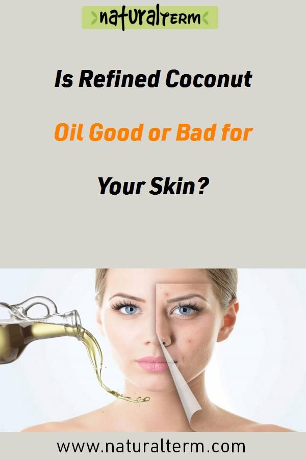 Is Refined Coconut Oil Good Or Bad For Your Skin Refined Coconut Oil Properties Safeness Skin Care Refined Coconut Oil Coconut Oil For Skin Coconut Oil