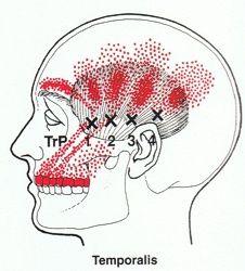 Temporomandibulair syndroom, Gevoelige tanden, Sinusklachten, Kaakpijn, Kiespijn, Pijn en Jeuk aan het Oor, Allergische Rinitis, Trillend Ooglid