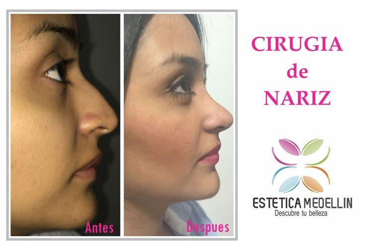 Cirugía de Nariz  Pide ya tu cita de valoración #EsteticaMedellin  Teléfono: 2688128 WhatsApp 3218736882