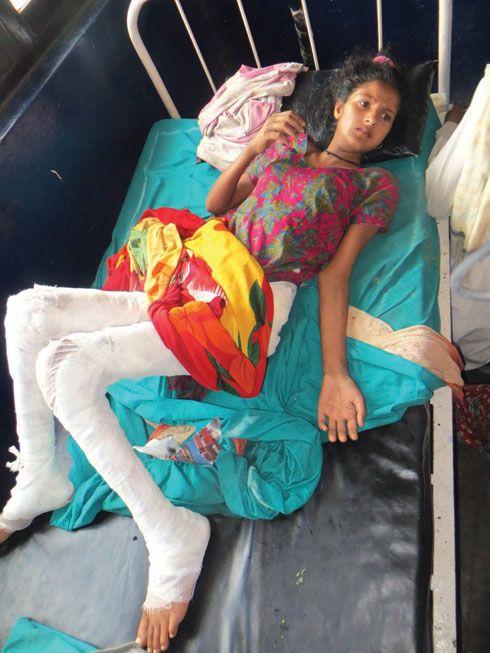 Rihana undergoing treatment for burns at a hospital.(Tekendra Basyal/Republica) ▼6May2014Republica|Woman burnt alive in dowry case in Banke http://www.myrepublica.com/portal/index.php?action=news_details&news_id=74173 #Rihana_Sheikh_Dhapali #Hirminiya #Banke #she_was_burnt #Nepal