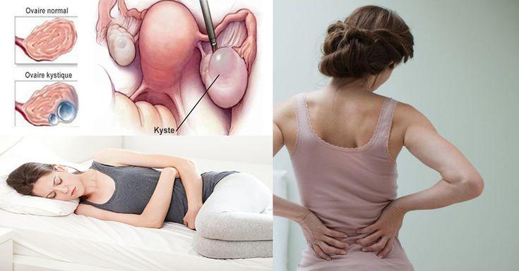 Beaucoup de femmes ont des kystes ovariens à un moment donné de leur vie. Bien que la plupart des kystes ovariens soientinoffensifs et disparaissent sans traitement en quelques mois, ceux qui se sont rompus peuvent produire des complications graves. Les meilleures façons de protéger votre santé sont de connaître ces symptômes qui peuvent signaler un …