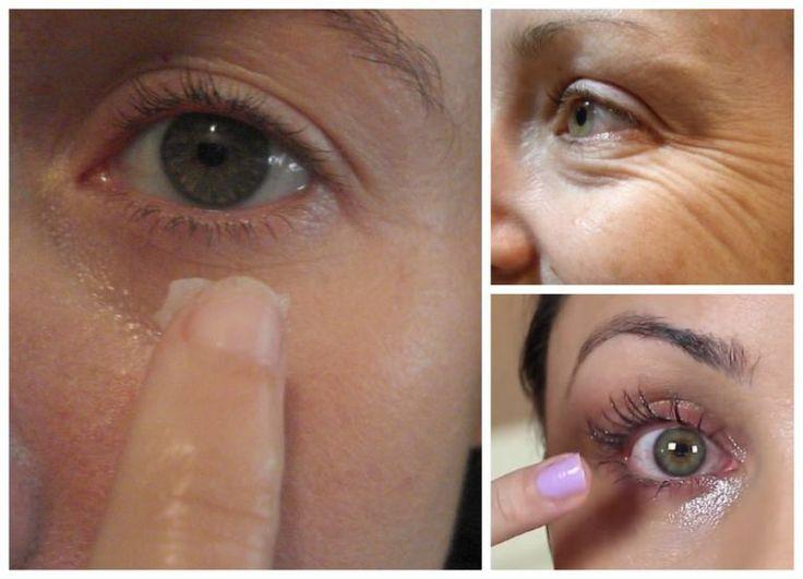 Cel mai bun antirid natural pentru ochi! Mai ieftin decât orice cremă! - dr. Andrei Laslău