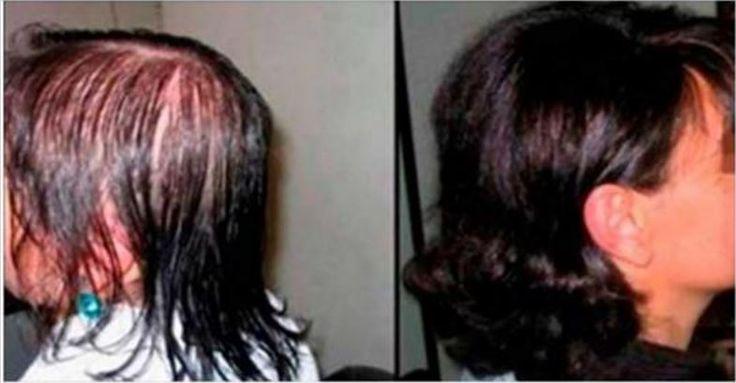 Senza dubbio il viso di una persona è come una prima fotografia per gli altri e i capelli sono parte di questa immagine. Per avere capelli sani, è necessario avere costanza e cura quotidiana, soprattutto se la capigliatura è folta, ma danneggiata. I capelli hanno bisogno di molta attenzione e possono essere danneggiati da varie …