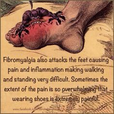 Fibro Foot Pain -can't say this has ever been an issue for me-hopefully it never will! Too much stuff to deal with already!