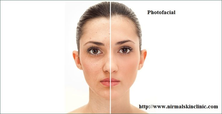 Photofacial Treatment - Karnataka - Bangalore ID848901
