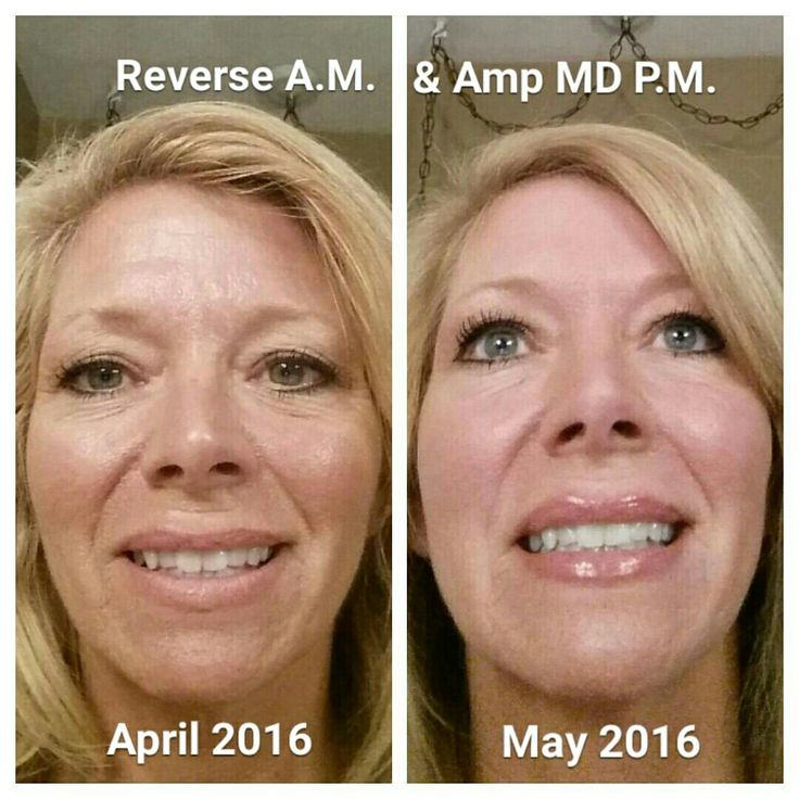 My very OWN 30 day results!! ) Minimizing my pores, fine
