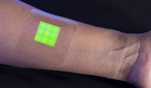 Researchers have developed a new kind of wound dressing that could serve as an early-detection system for infections.