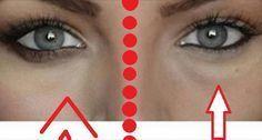 ECCO COSA SUCCEDE SE APPLICHI BICARBONATO DI SODIO SOTTO GLI OCCHI! FUNZIONA DAVVERO! CONDIVIDILO! La maggior parte delle persone conosce i benefici dell'uso del bicarbonato di sodio in cucina, per la bellezza e la pulizia. Fra i vari usi di questo prodotto, descriviamo quello per l'apparenza del nostro viso. Col bicarbonato di sodio si possono …