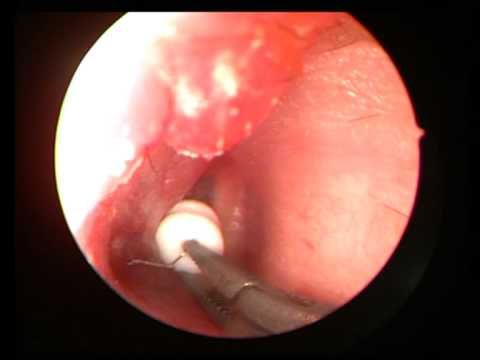 EAR GROMMET INSERTION