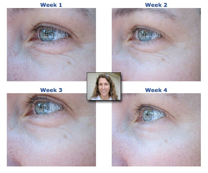 Argireline Wrinkle Reduction. Just one of our World Class Ingredients.
