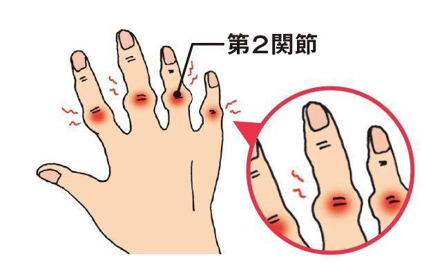 の 痛み の 付け根 親指