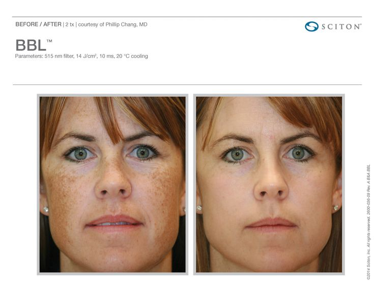 Photo facials using Sciton BBL and Forever Young BBL at Glow Mediclinic