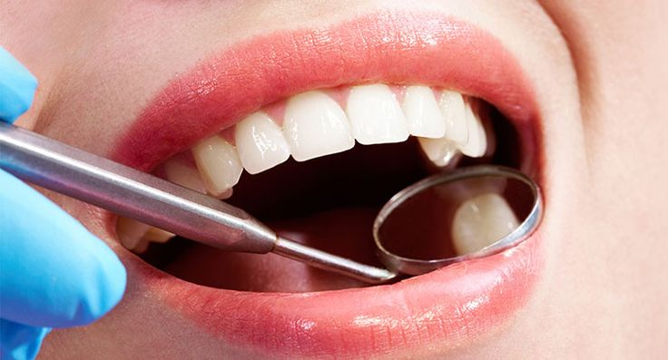 Dental Tooth Filling & Composite Dental Fillings Cost in India!