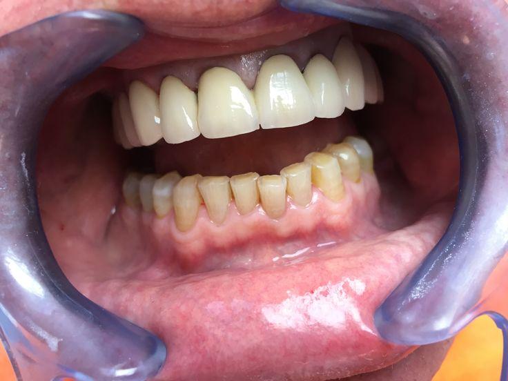 4 patient - Tous les traitements illustrés dans notre galerie de photos ont été réalisés à l'intérieur de notre clinique par nos professionnels de la santé dentaire. - Top Dentiste Budapest, Hongrie