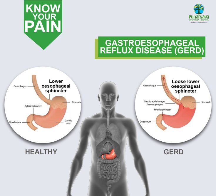 Gastroesophageal reflux disease (GERD) is a chronic digestive disease that occurs when stomach acid or, occasionally, stomach content, flows back into your food pipe (esophagus). A valve called the LES (Lower esophageal sphincter) opens between your esophagus and stomach to allow food and liquids to enter the stomach. If the valve doesn't close all the way, or if it opens too often, stomach acid can move up into your esophagus causing GERD.  Risk factors • Being overweight or obese • Smoking…