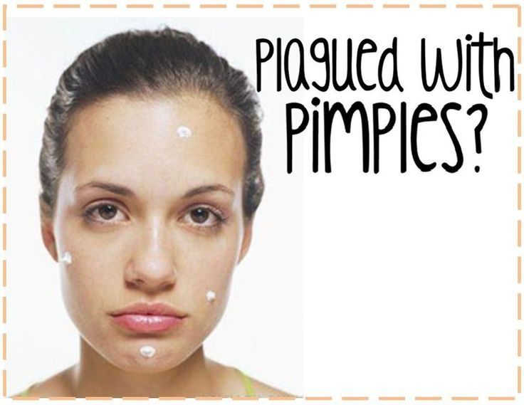 Easy pimple cure: 1 part apple cider vinegar, 3 parts water. Let sit then rub onto face/acne area with a cotton swab. Let sit for 15 minutes then rinse with cold water. Leave on affected area overnight and pimples should clear up by morning! Don't know if this works or not, but can't hurt, can it?