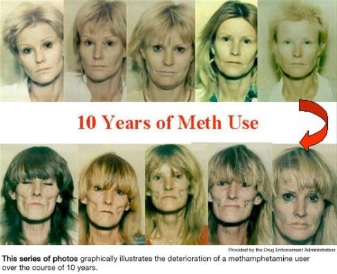 how to tell if someones on meth