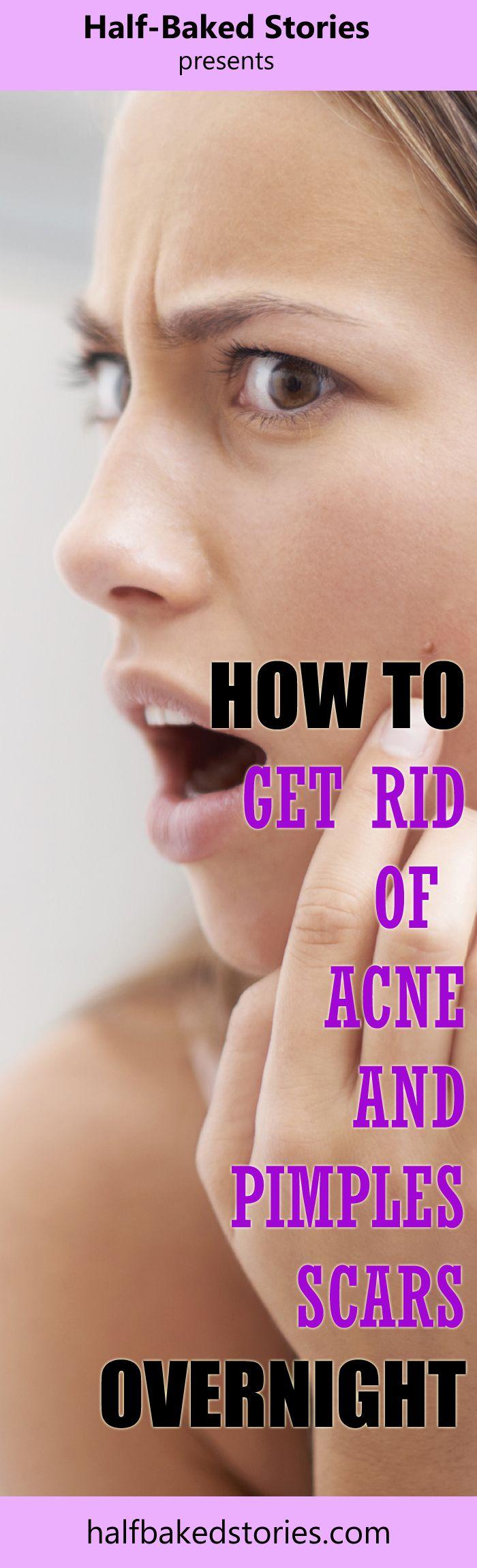 Wie Akne-Narben mit natürlichen Mitteln loswerden