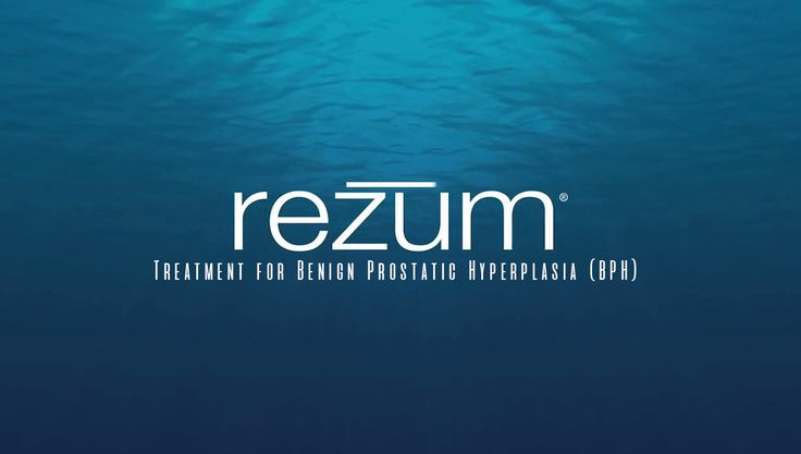 The Rezum treatment for Benign Prostatic Hyperplasia (BPH) is a transurethral RF thermal therapy completed in a single visit to a clinic or outpatient setting  #RezumBPH #OxfordFL  http://www.advancedurologyinstitute.com/news/rezum-benign-prostatic-hyperplasia